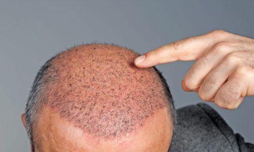 Hair Transplant in Istanbul