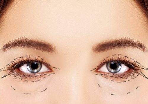 Lower-Eyelid Blepharoplasty.Asian Eyelid Surgery.Upper blepharoplasty.Correcting the aging process